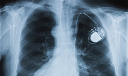 Superior Tube supplies high specification tubing for Cardiac Rhythm Management (CRM) devices